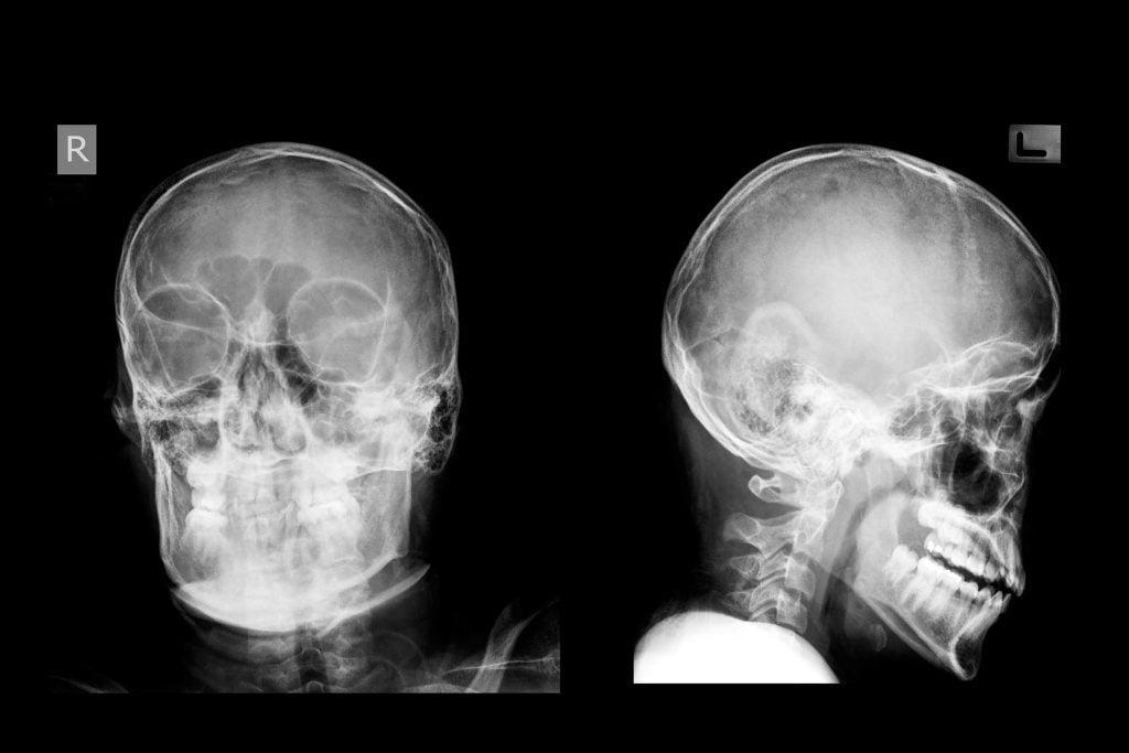 concussion test