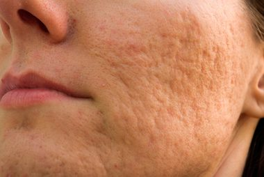 03-rolling-The-5-Types-of-Acne-Scars-and-How-to-Treat-Them-153263516-Budimir-Jevtic