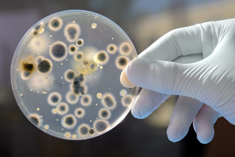 Hand Holds Petri Dish with Bacteria Culture