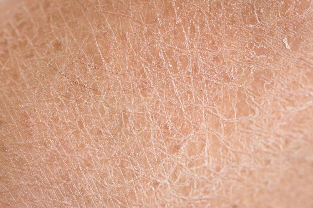 Macro dry skin (ichthyosis) detail