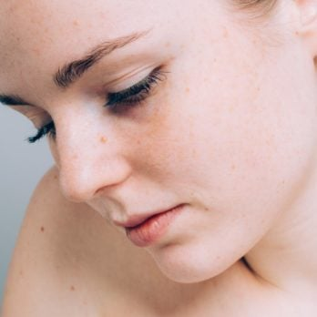 10 Strange Skin Problems That Could Be a Sign of a Serious Disease
