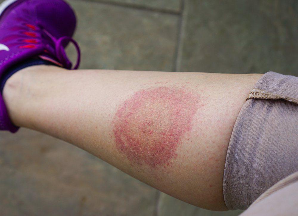 Lyme disease, Borreliosis or Borrelia, typical lyme rash, spot. A person, leg bitten by a deer tick. Selective focus.
