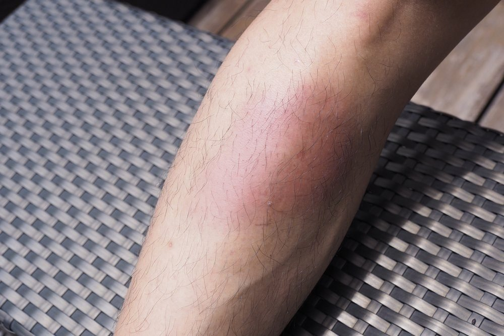 close up Shin Swollen bruise of a man, After Work hard in Thai boxing or Muay Thai ,No pain no gain concept , fitness and cardio