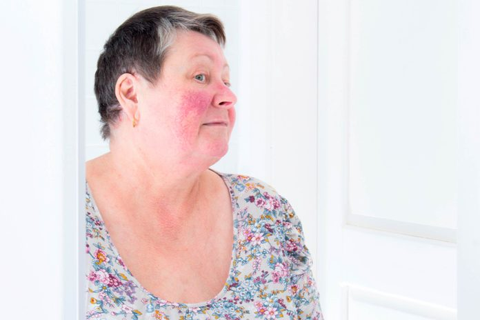 woman with rosacea looking in a mirror