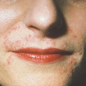 perioral dermatitis