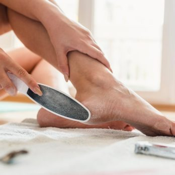 What Really Causes Cracked Heels—and How to Get Rid of Them
