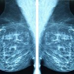 8 Reasons to Request an Earlier Mammogram