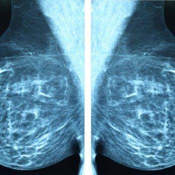 8 Reasons to Request an Earlier Mammogram