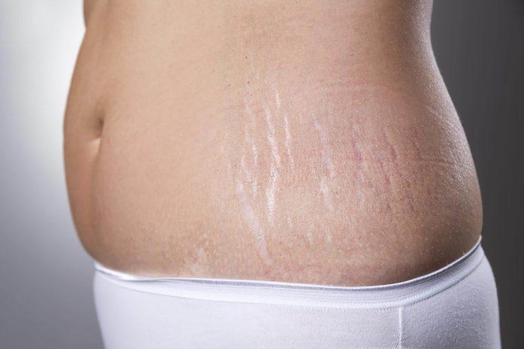 cellulite myths