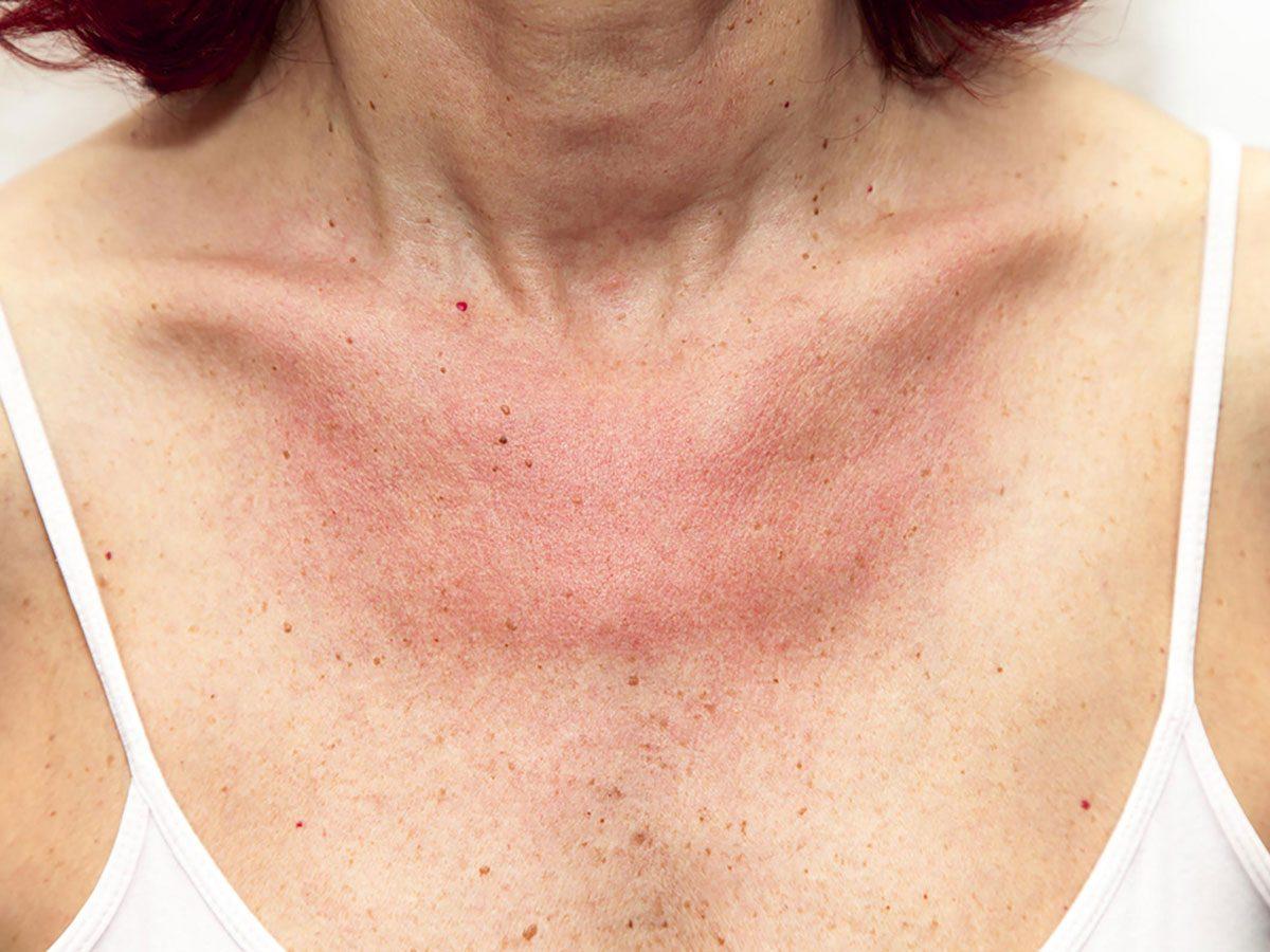 epsom salt bath - eczema