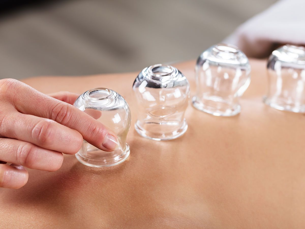 alternative medicine cupping