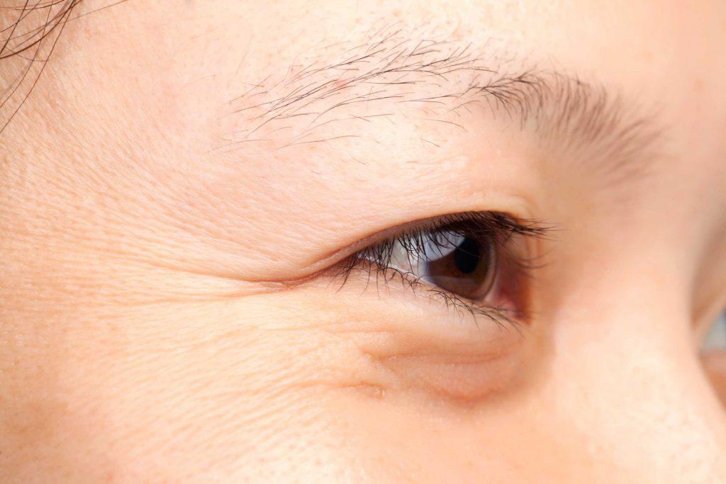 worst skin care advice wrinkles