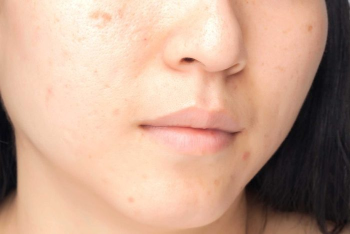 worst skin care advice brown spots
