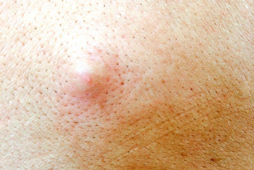 worst skin care advice cyst