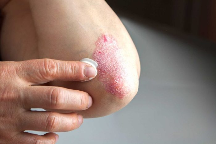 worst skin care advice