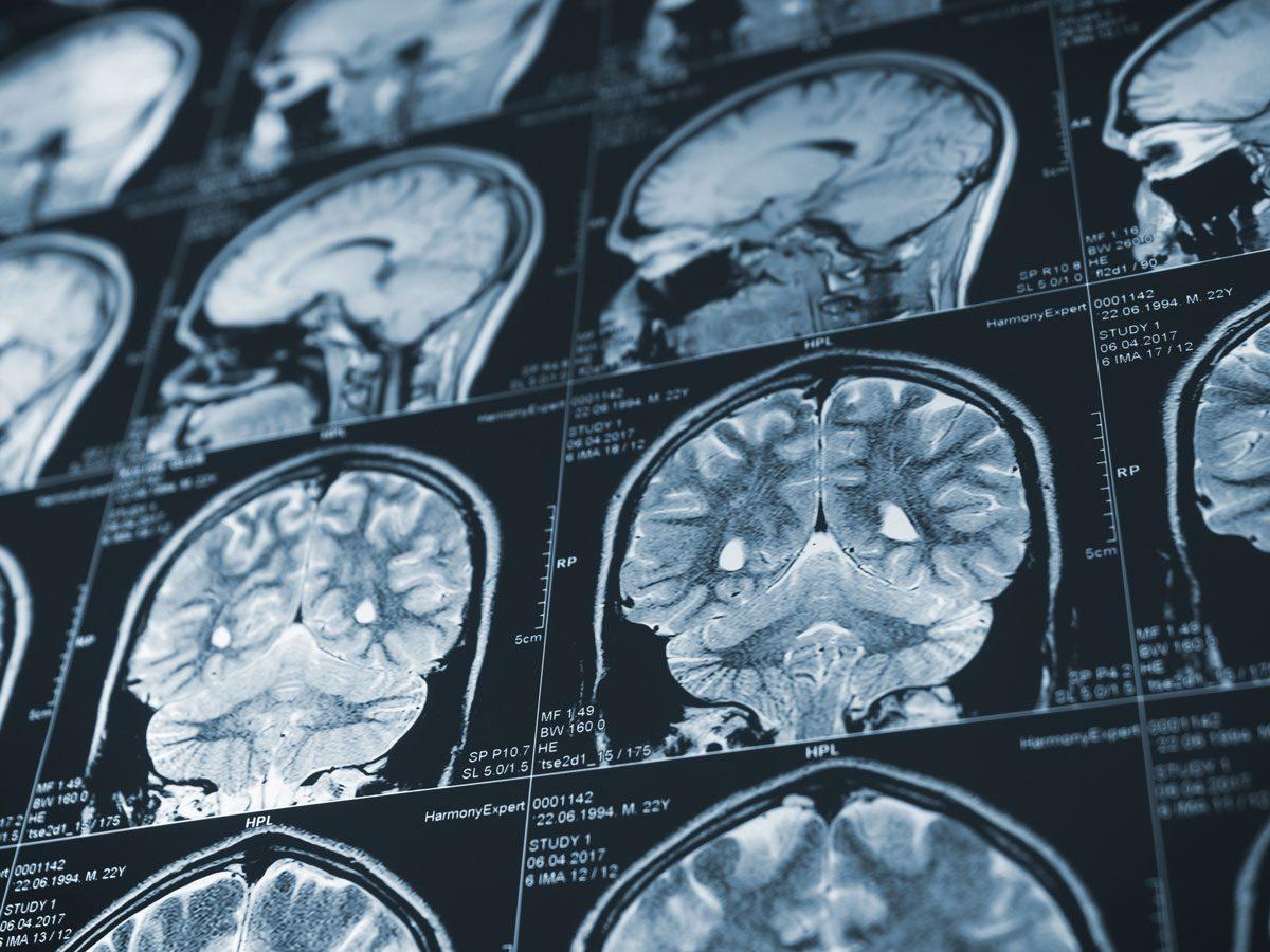 Alzheimer's Disease - brain scan