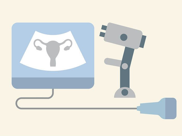abnormal pap test: what to do after