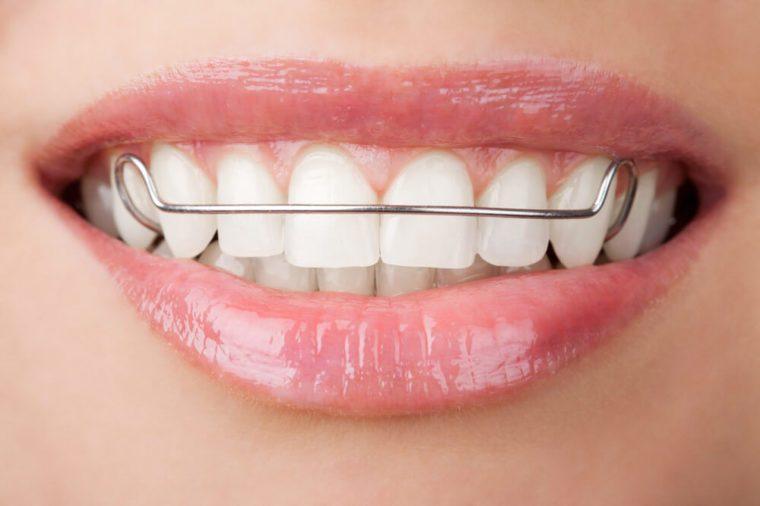 orthodontist secrets retainer