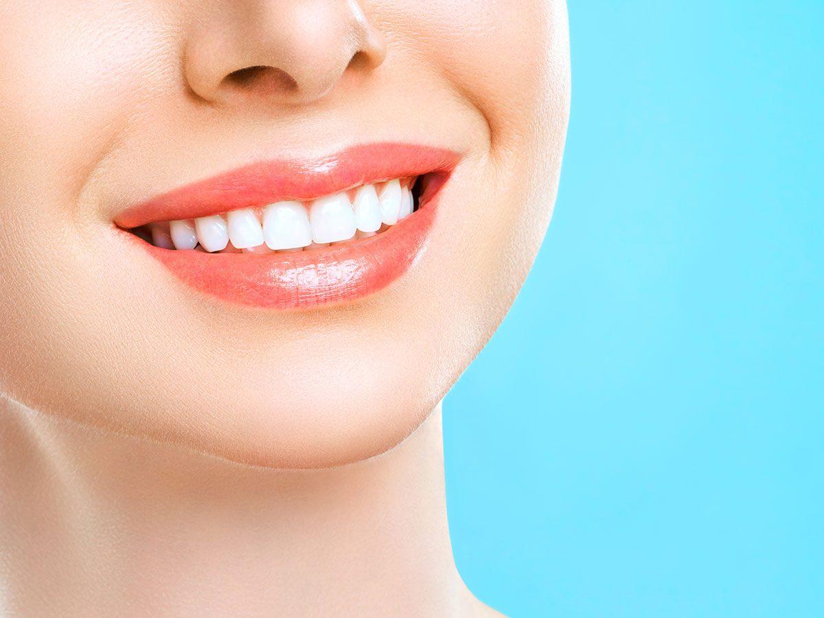 orthodontist secrets