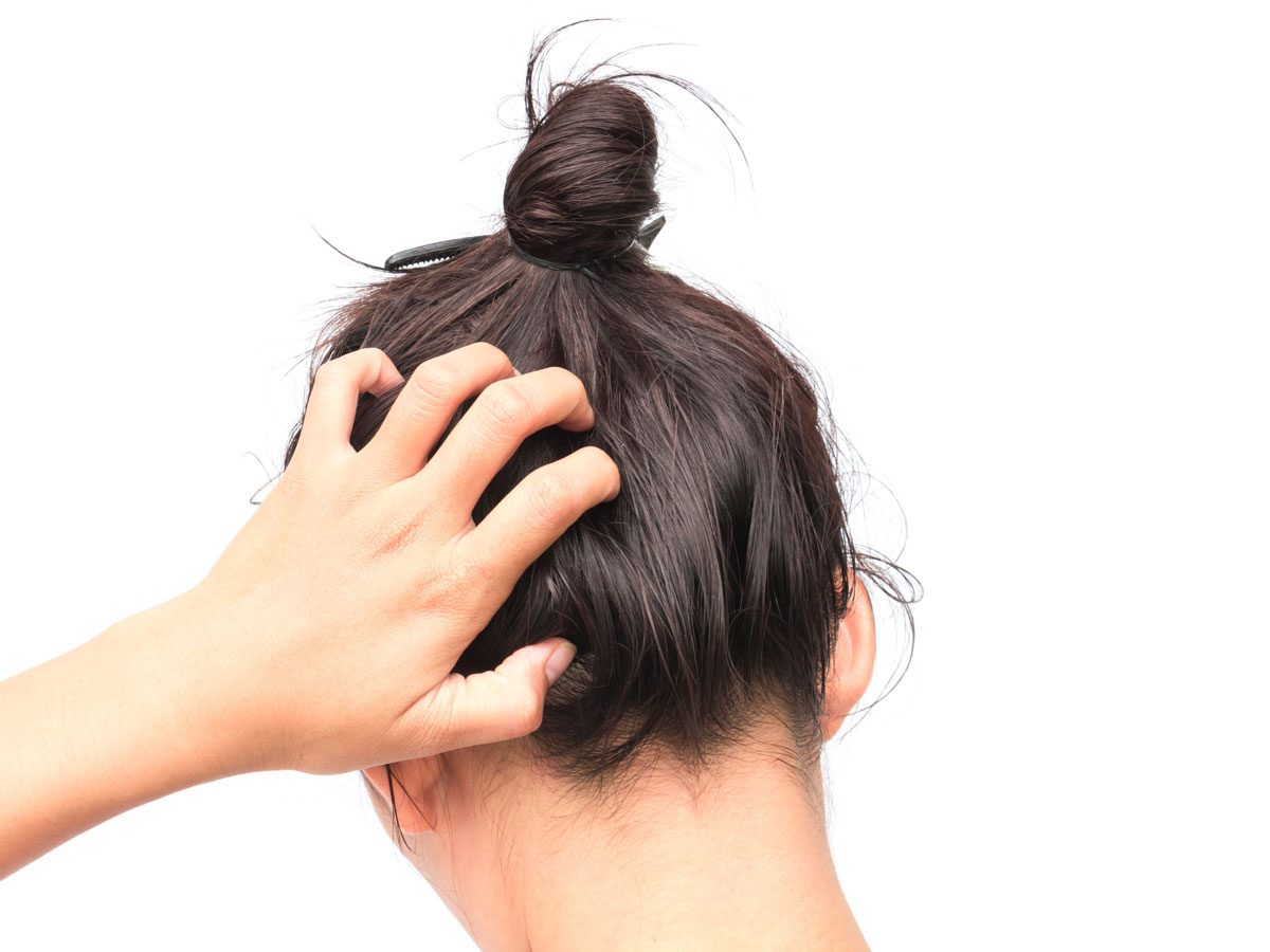 scalp psoriasis - woman itching scalp