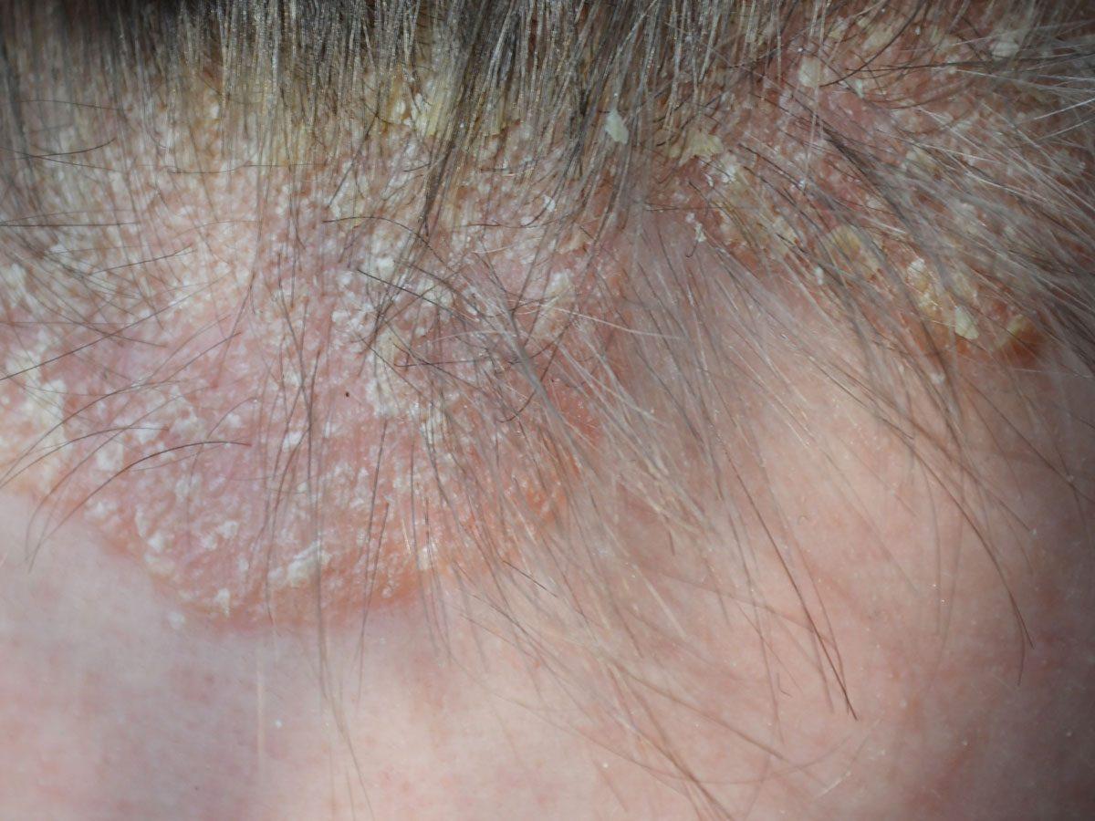 scalp psoriasis - scalp psoriasis