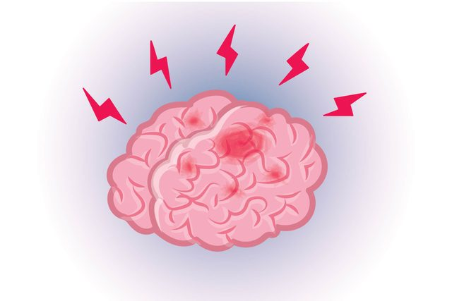 Graphic of human brain with lightning bolts all around