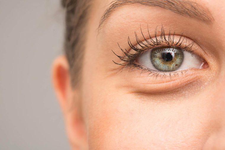 causes of dark under-eye circles