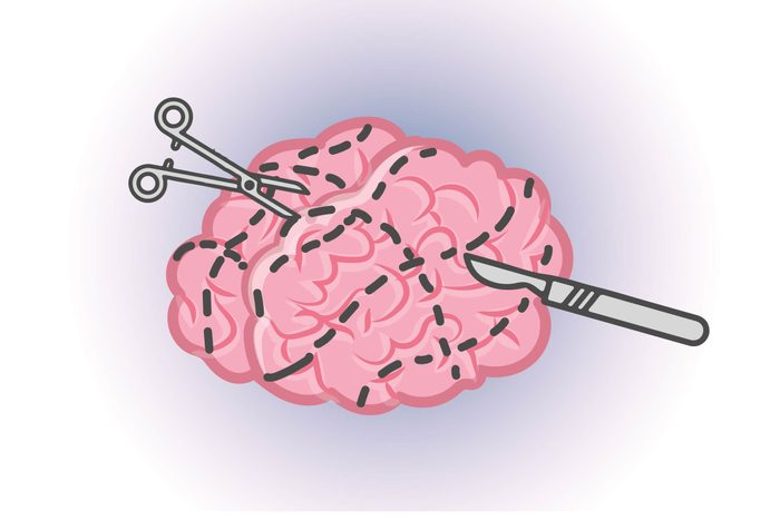 Graphic of human brain with scalpel and knife