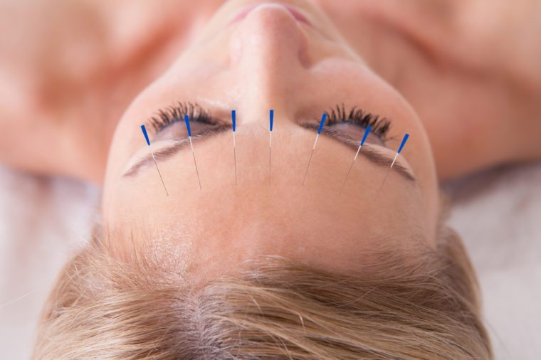 Anti-Aging Treatments | Detail Of A Woman Receiving An Acupuncture Needle Therapy