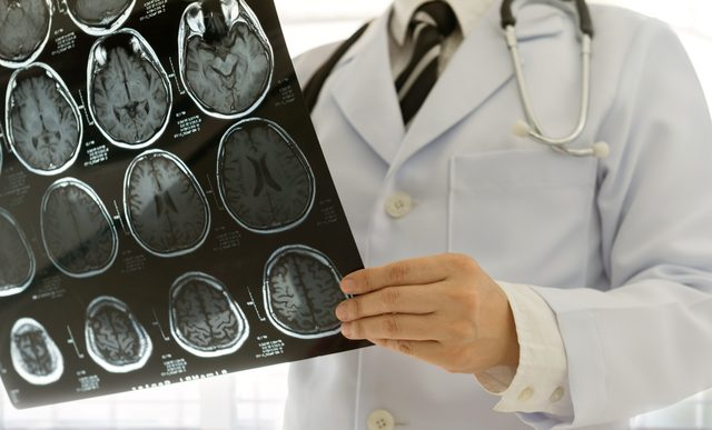 doctor holding brain scans