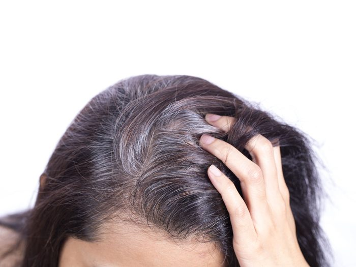what causes grey hair