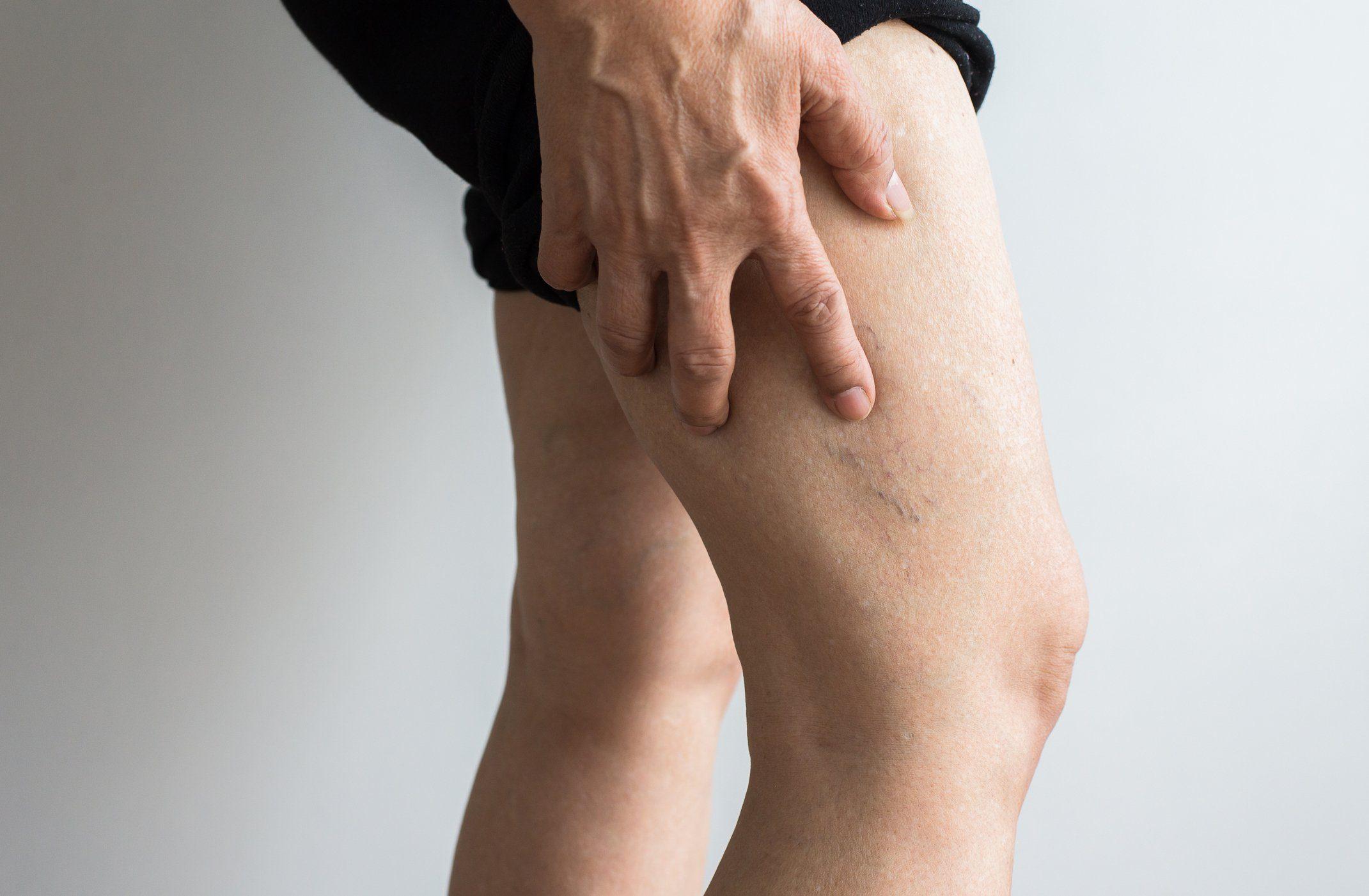 deep vein thrombosis | veins on elderly woman's leg