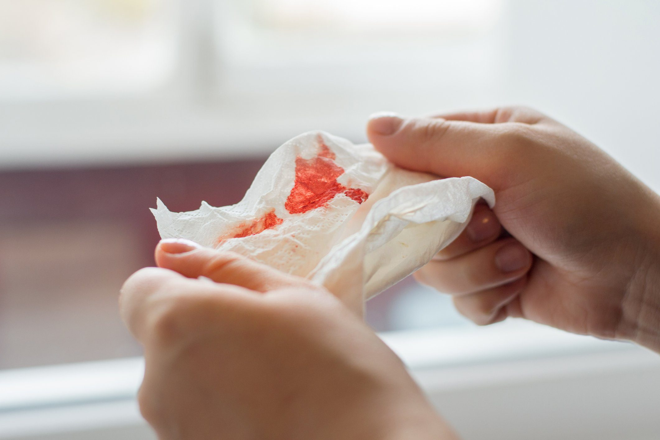 signs your body is in trouble | close up of hands holding a bloody tissue