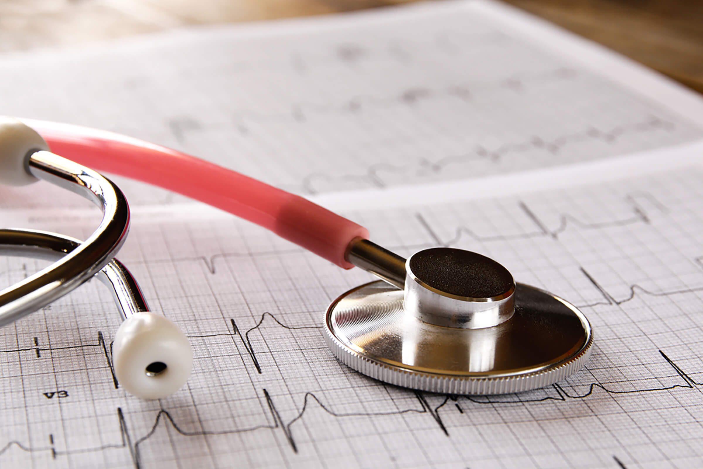 type 2 diabetes complications | Stethoscope on ekg printout