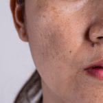 What is Hyperpigmentation? What to Know About Dark Spots and Skin Discolouration