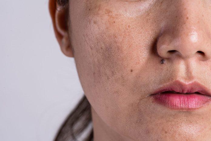 hyperpigmentation   closeup of woman's skin   dark spots skin discolouration
