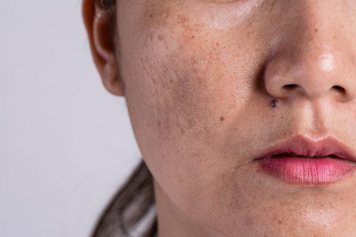 hyperpigmentation | closeup of woman's skin | dark spots skin discolouration