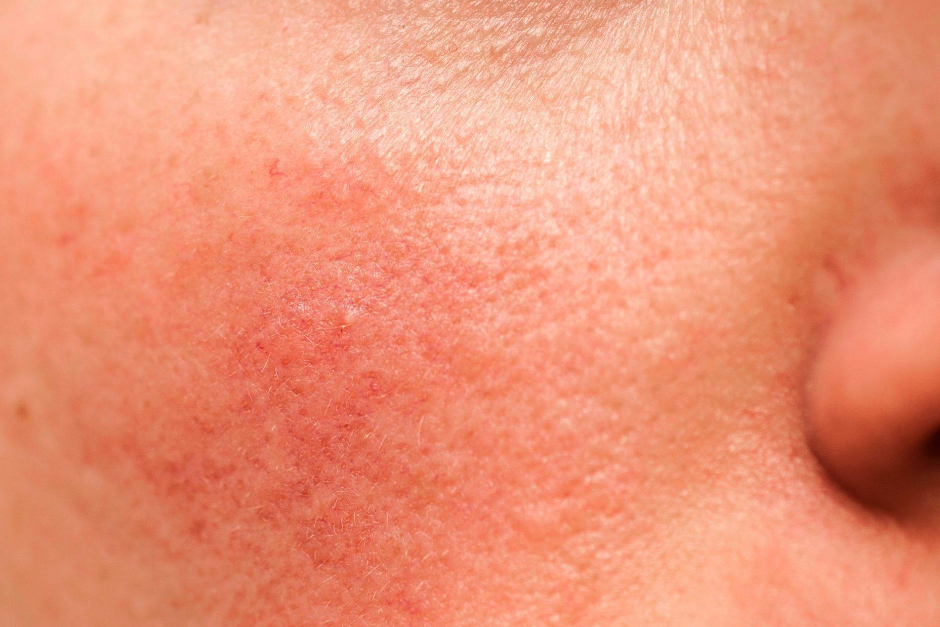 rosacea on face