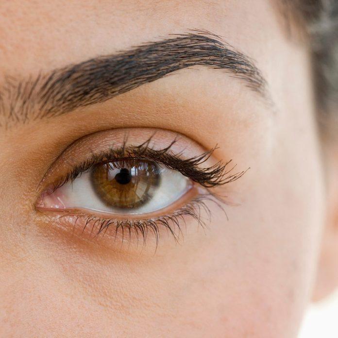 eyelid dermatitis | Extreme close up of woman's eye