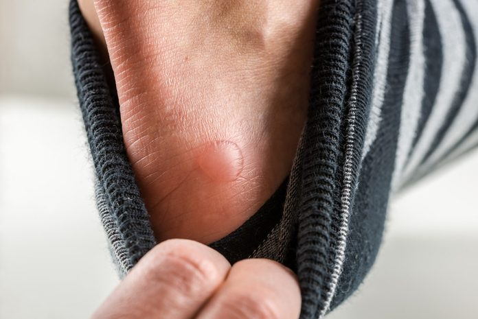 friction blister | heel with a blister