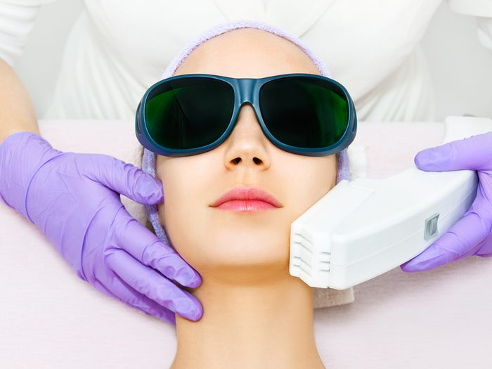 what to know before getting a laser treatment   Young,woman,receiving,laser,treatment
