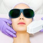 What to Know Before Booking a Laser Treatment for Your Face