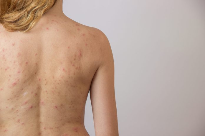 body acne | Young,girl,with,acne,,with,red,and,white,spots,on