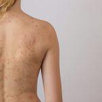 How Do I Deal With Body Acne?