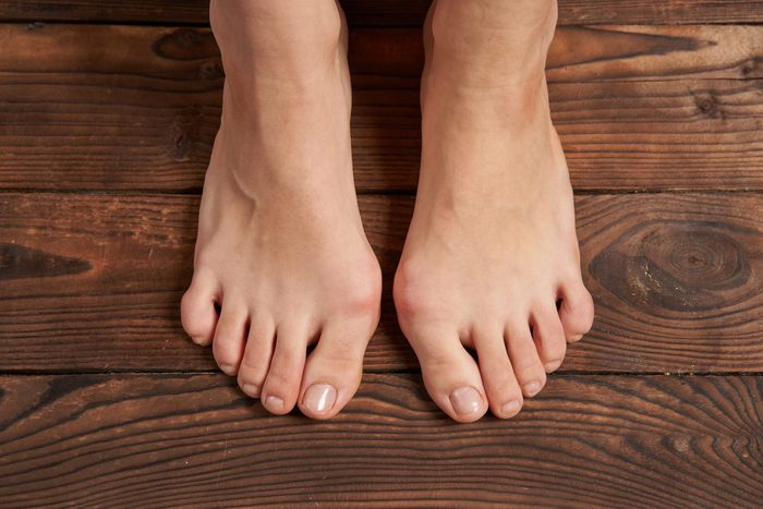 bunion pain relief | Hllux Valgus On Female Legs Close Up On Wooden Background