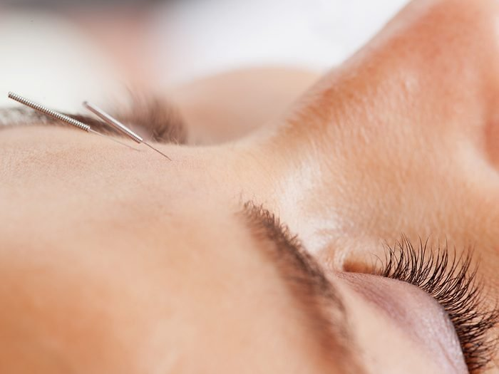 cosmetic acupuncture | acupuncture facial | Macro,detail,of,facial,acupuncture,treatment,,shallow,dof,focus,on