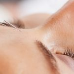 "Is Cosmetic Acupuncture Actually ""Natural Botox""?"