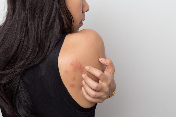 Woman Showing Her Skin Itching Behind With Allergy Rash Urticaria Symptoms