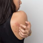 What Causes Hives? Everything You Need to Know About Urticaria