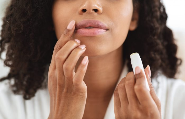 sunburned lips   woman applying lipbalm with SPF to her lips